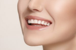 tooth whitening royse city