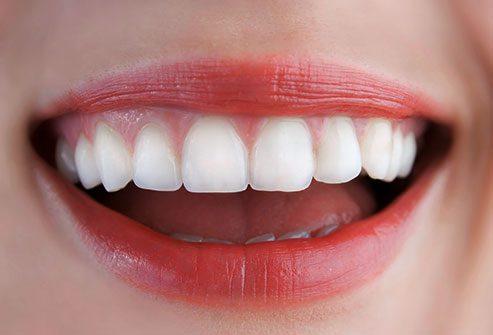 photo of teeth