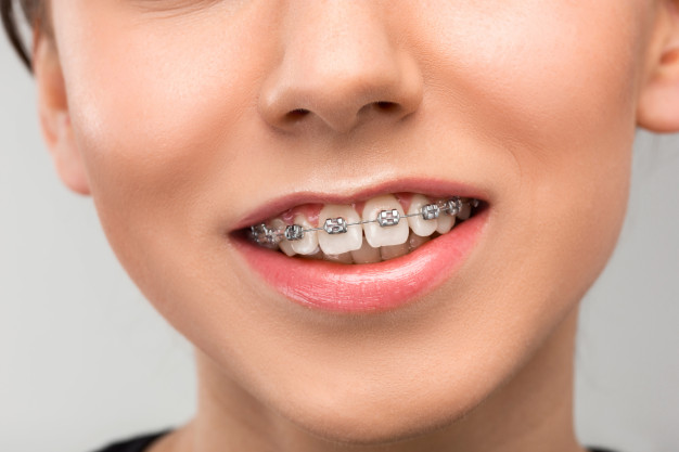 beautiful-young-woman-with-teeth-braces_155003-11140